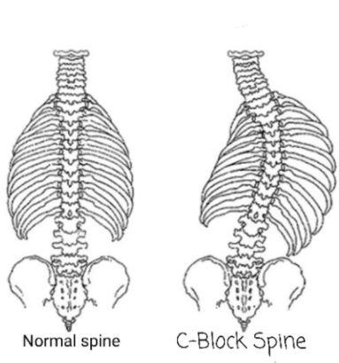 spine.JPG.d64753156ce97fd88222fbeea0e0de5b.JPG